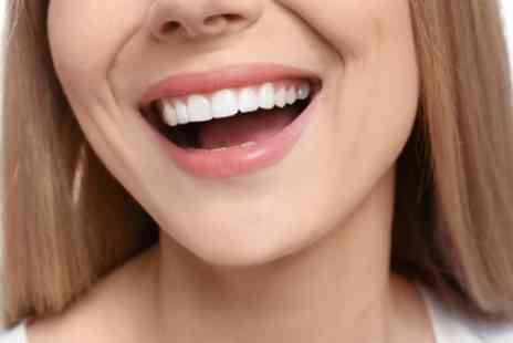 Knutsford Road Dental - Zoom Teeth Whitening with Scale and Polish - Save 62%