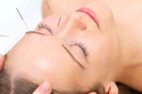 TCM Wellbeing Clinic - Acupuncture for Face or Body - Save 52%