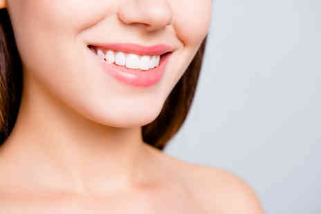 Ismile Clinic - Session of teeth whitening treatment - Save 74%