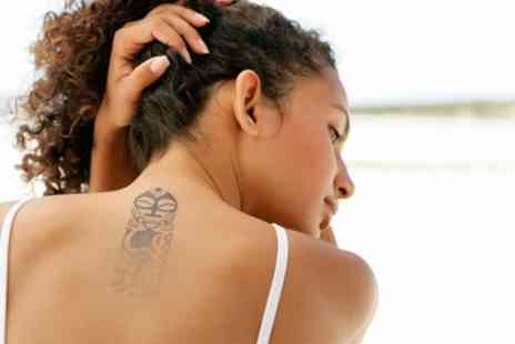 Acreedo Tattoos and Body Piercing - Laser Tattoo Removal on Choice of Area - Save 86%