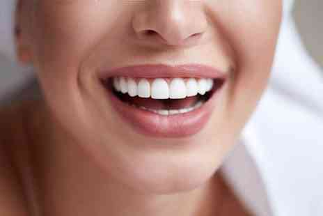 Harley Dentist - Invisalign braces on one arch - Save 74%