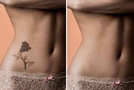 SkinSpaceUK - Three sessions of laser tattoo removal on a 1cmx3cm area - Save 74%