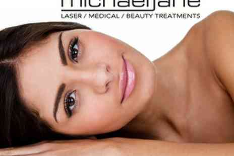 Michael Jane, Queensway - £59 for Three Microdermabrasion treatments - Save 66%