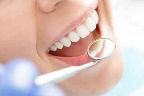 Savay Dental Care - Dental Clean, Scale and Polish with Optional Check Up - Save 56%