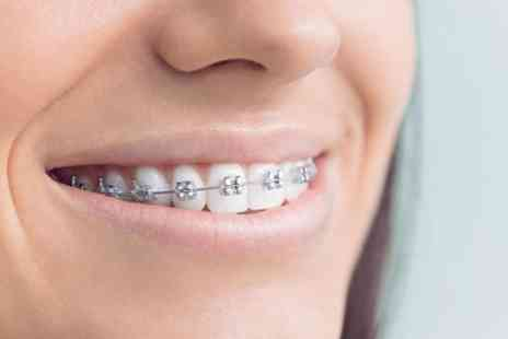 Ortho London - One or Two Arches of Metallic or Ceramic Braces - Save 34%
