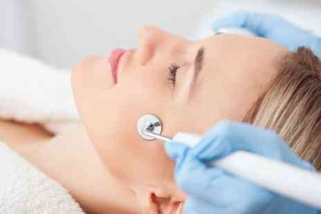 Imagiine Beauty - One or Three Sessions Microdermabrasion - Save 68%
