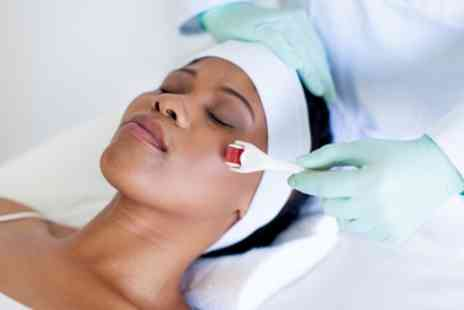 Roxy Foxy Aesthetics - Face or Scalp Microneedling Session - Save 26%