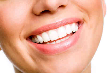 Smyle Teeth Whitening - Laser teeth whitening treatment annual plan including four treatments - Save 80%
