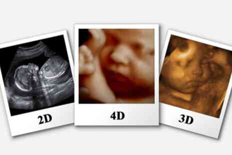 Baby Scanning Boutique - Ultrasound Gender or Bonding Scan or Both - Save 34%