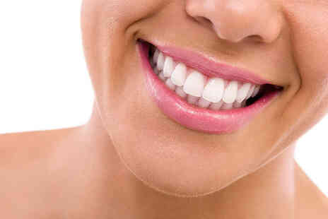 Queensway Dental Practice - Two porcelain veneers - Save 53%
