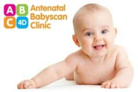 Antenatal Babyscan Clinic - Diamond Package Baby Scan With 4D Imaging, Colour Prints and DVD - Save 57%