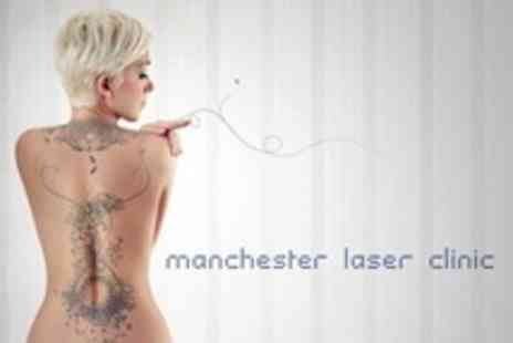 Manchester Laser Clinic - Four Laser Tattoo Removal Treatments - Save 75%