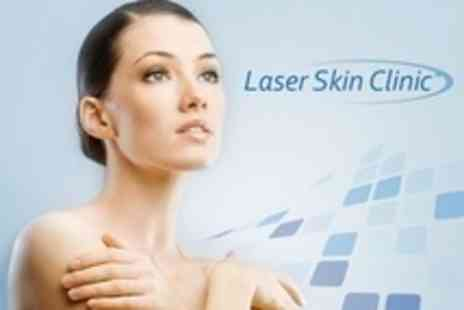 Laser Skin Clinic - Derma Print Skin Analysis and Choice of Facial Peel For One - Save 74%
