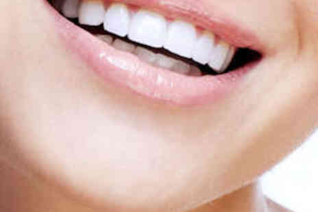 Alter Ego - In Clinic Teeth Whitening Session for One - Save 82%