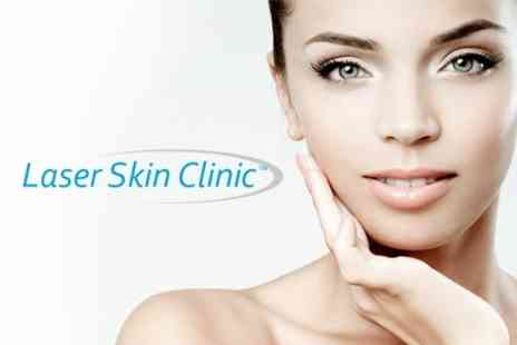 Laser Skin Clinic - Skin Peel Glyconic - Save 68%