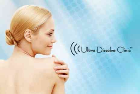 Ultra Dissolve Clinic - Electrolysis For Thread Veins, Milia, Skin Tags and Warts - Save 53%