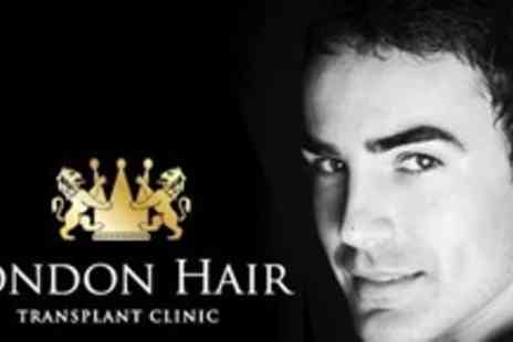 London Hair Transplant Clinic - Follicular Unit Transplant Treatment With Two Thousand Hairs - Save 65%
