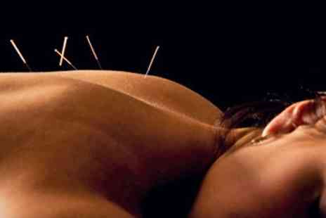 China Healthcare - Acupuncture With Massage and Cupping - Save 71%