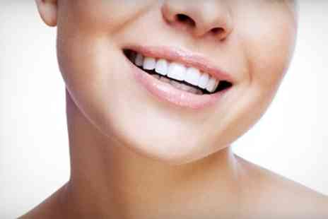 Parkdent Clinic - Two Porcelain Dental Veneers - Save 17%