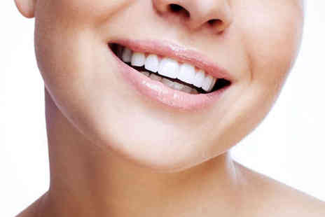 Neat Teeth - One Laser Teeth Whitening Session - Save 82%
