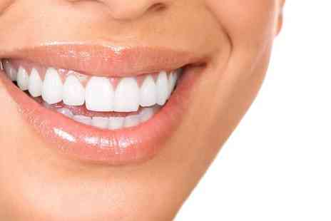 Parkdent Clinic - Laser Teeth Whitening with Oral Hygiene Check - Save 81%