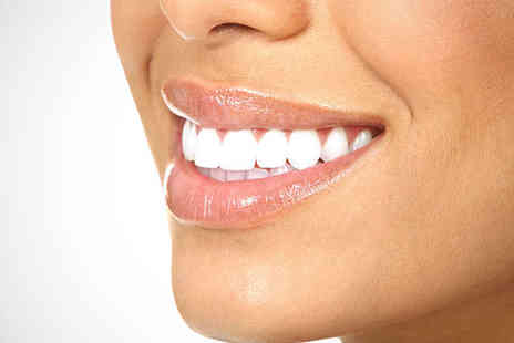 All Your Life - One Teeth Whitening Sessions - Save 81%