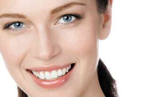 Smile Studio - Teeth Whitening Session With Follow up Home Kit - Save 72%