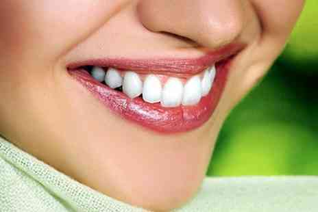 Parkdent Clinic - Two Porcelain Dental Veneers - Save 37%