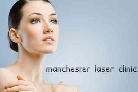 Manchester Laser Clinic - Three Facial Thread Vein Removal Sessions for £90 - Save 85%