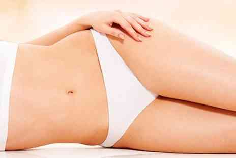 Beyond Beauty - Six Sessions of IPL Hair Removal - Save 82%