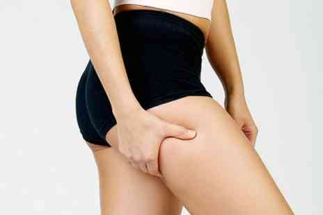 Lloyds Laser - Three Laser Lipolysis Sessions - Save 76%