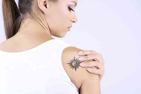 Felicity Natural Beauty - Four Sessions Laser Tattoo Removal  - Save 44%