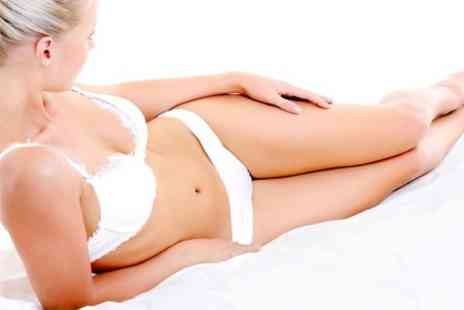 The Zap Experience - Six Sessions IPL Hair Removal - Save 88%