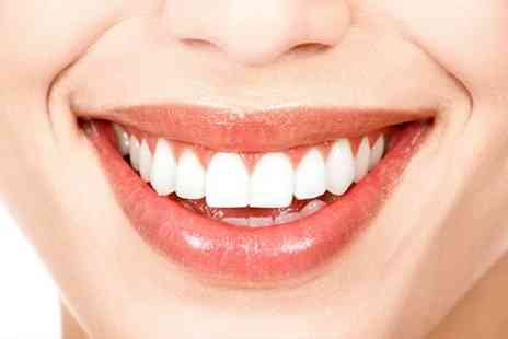 Miami Smile - One Session of Laser Teeth Whitening - Save 47%