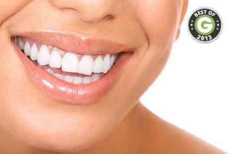 All Your Life - Teeth Whitening  - Save 61%