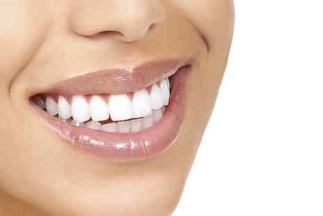 Parkdent Clinic - Two Porcelain Dental Veneers  - Save 50%