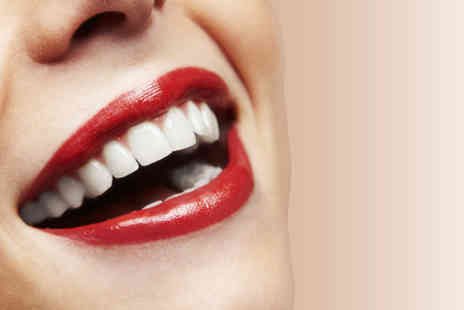 Parkdent Clinic - 60 minute LED teeth whitening treatment including consultation and standard - Save 82%