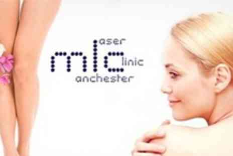 Manchester Laser Clinic - Ten Stretch Mark Treatments - Save 92%