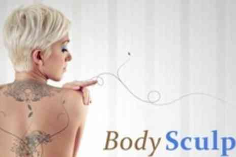 Body Sculpt - Three Laser Tattoo Removal Treatments - Save 81%