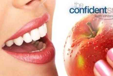 Confident Smile - Cool Blue Teeth Whitening Treatment  - Save 79%