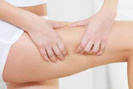 Elegance Beauty Clinic - Cryogenic Lipolysis - Save 82%