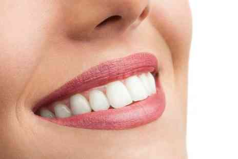 Parkdent Clinic - Teeth Whitening  - Save 80%