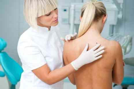 Michael Jane Laser Services - Mole, Wart, Millia or Skin Tag Removal  - Save 82%