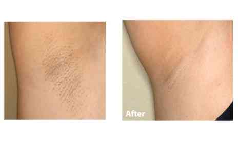 Fakeit Beauty - Six IPL hair reduction sessions for 1 medium area or 2 small areas - Save 85%