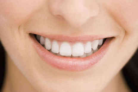 Smiles Dental Centre - Clear Braces for One Arch on Top or Bottom Teeth or Both Arches  - Save 57%
