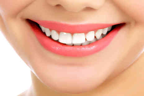 Simon Darfoor Dental - Two porcelain veneers including a consultation  - Save 74%