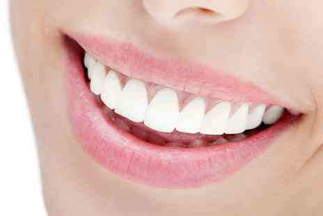 Dentally Exclusive - Six Month Smiles Clear Fixed Braces On Single - Save 50%