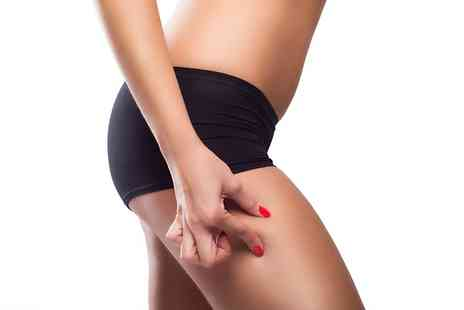 Body Sculpt - Three Sessions of Laser Lipolysis - Save 84%