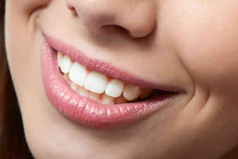 Parkdent Clinic - Two porcelain veneers  - Save 50%