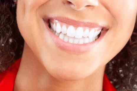 The Laser House - Non peroxide teeth whitening treatment - Save 80%